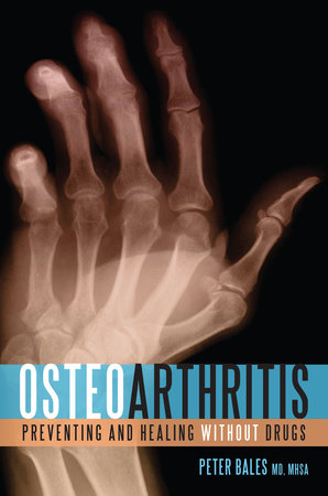 Osteoarthritis by Peter Bales