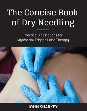 The Concise Book of Dry Needling by John Sharkey
