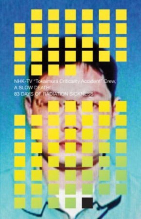 A Slow Death: 83 Days of Radiation Sickness by